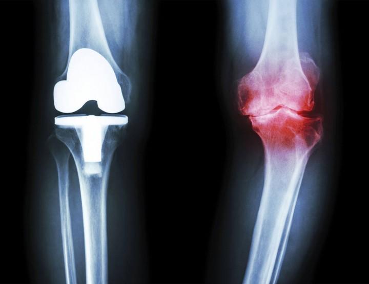 Health: Arthritis