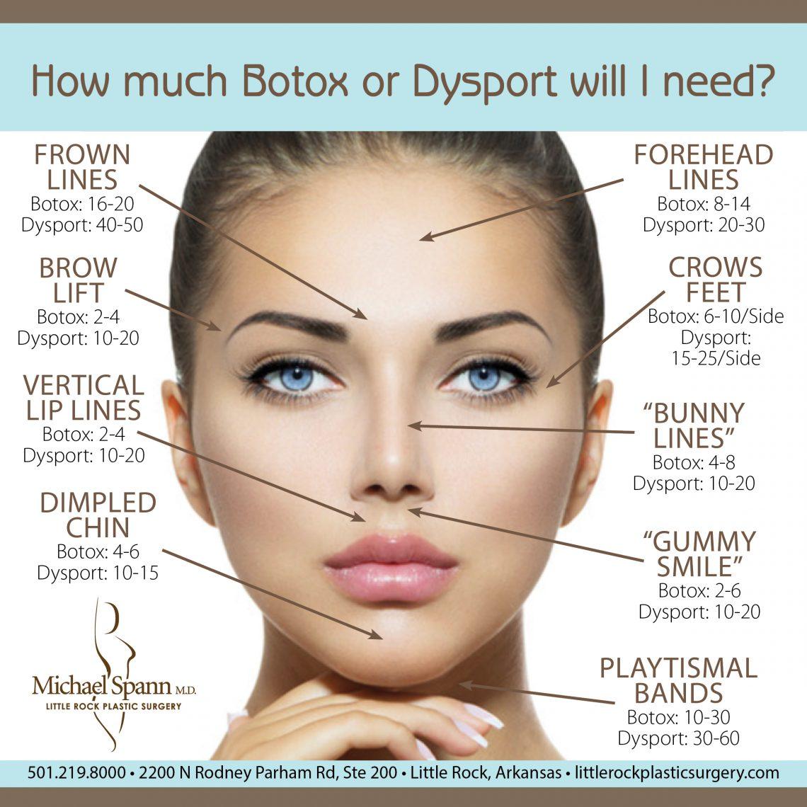 Why Don't I Love My Botox/Dysport Results? - AY Mag - AY ...