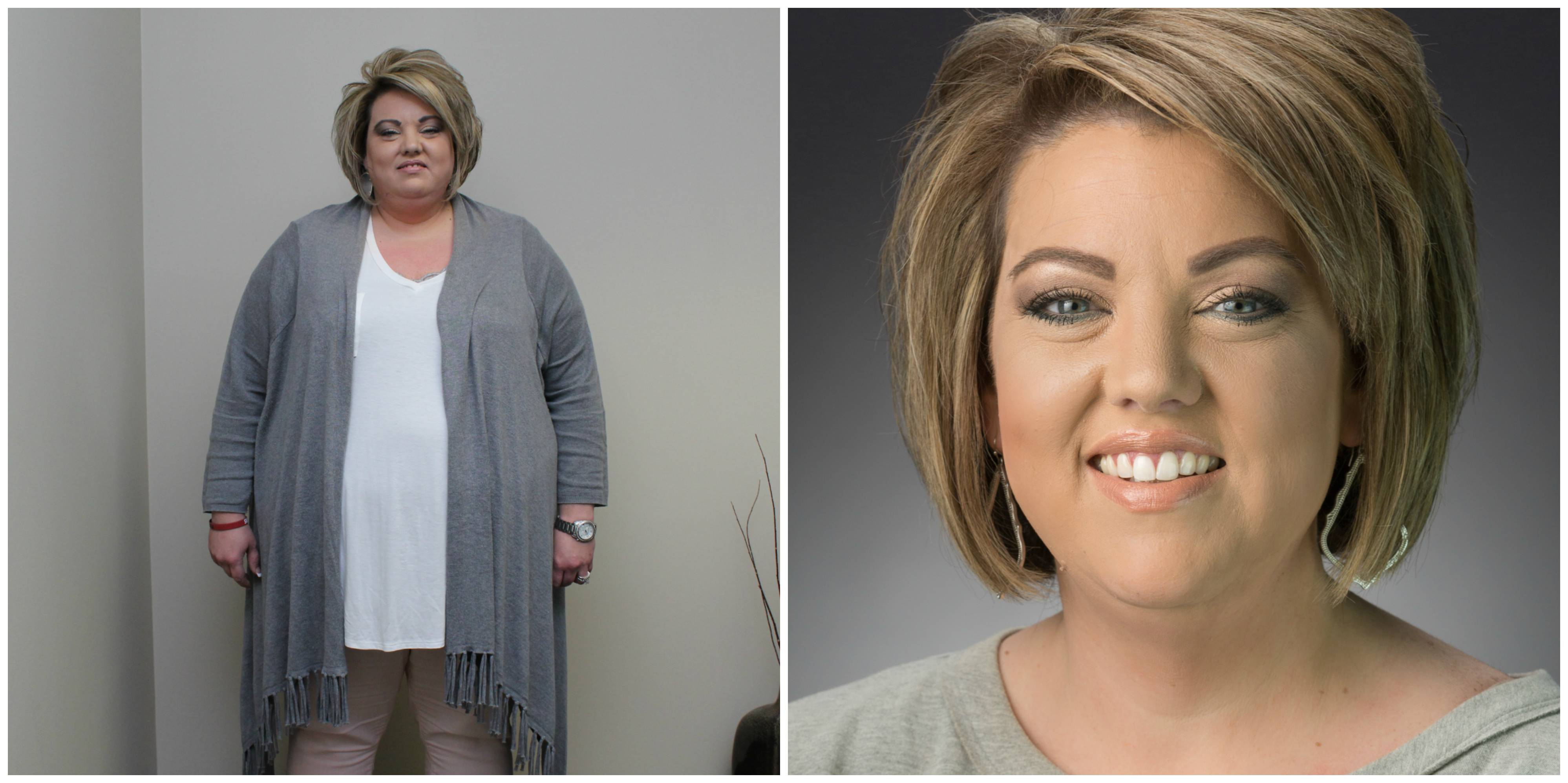 Heather Dodd before and after her surgery at Arkansas Heart Hospital.