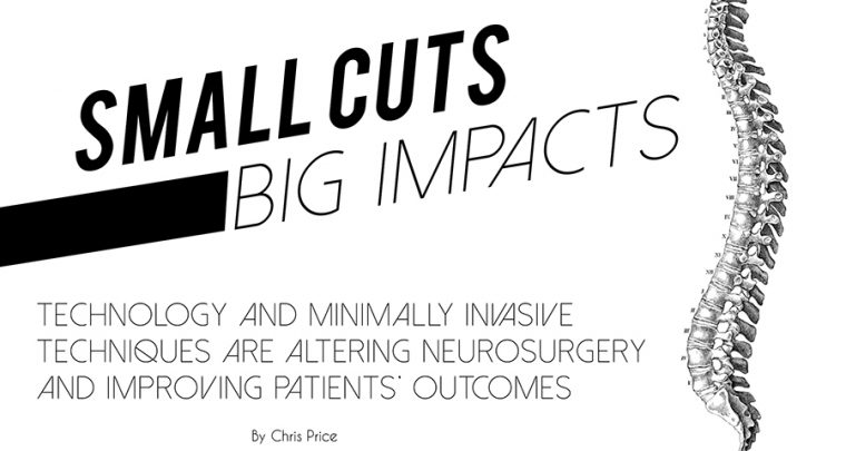 Small Cuts Big Impacts